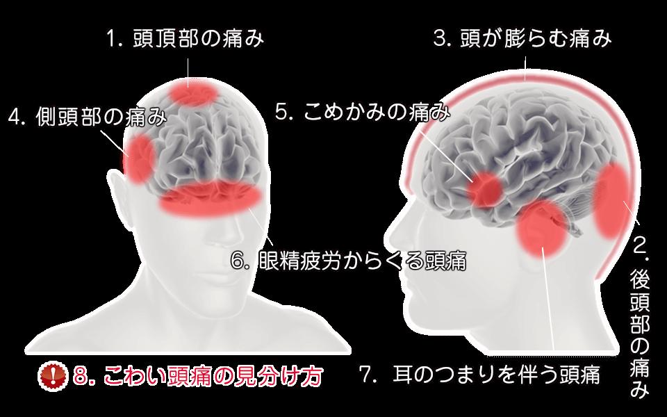 頭痛のメカニズム8項目