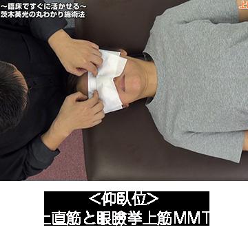 上直筋と眼瞼挙上筋MMT