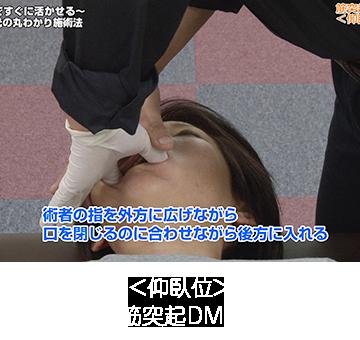 筋突起DMT